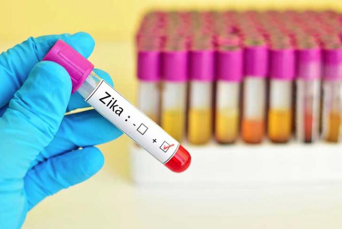 testing-for-zika-in-broward