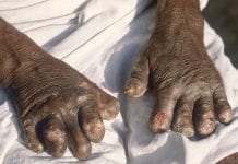 Case of Leprosy - Caribbean National Weekly News